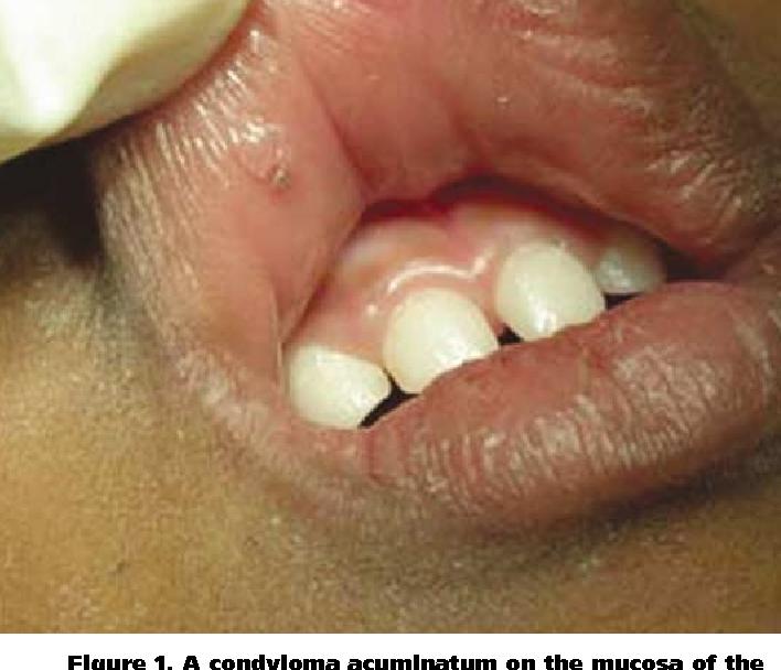 condyloma acuminata lips