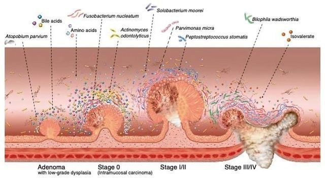 EARLY-ONSET COLORECTAL CANCER: CLINICO-PATHOLOGICAL IMPLICATIONS (EOCRC) – Romanian Medical Journal