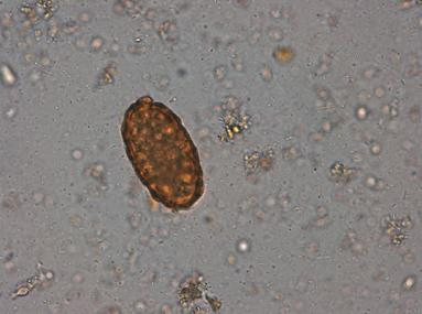 investigatii paraziti intestinali)