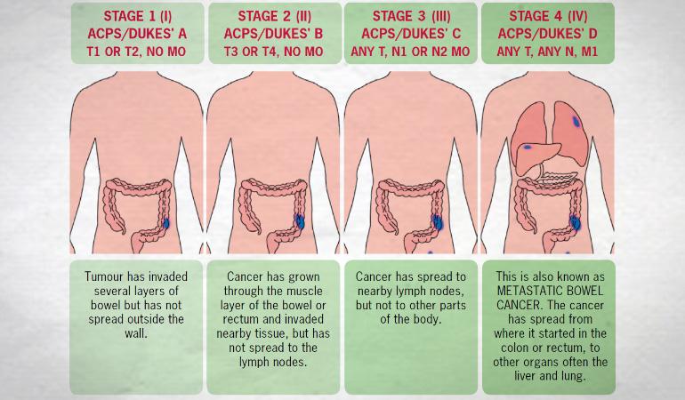 Cancerul colorectal poate fi vindecat daca este depistat precoce | Regina Maria