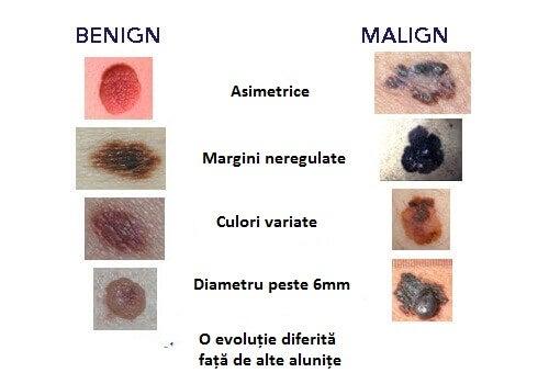 cancer intestinul gros polipi
