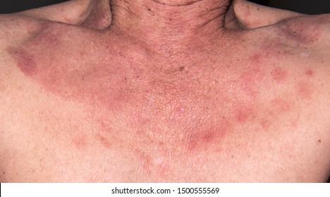 human papillomavirus infection neck tongue papillae pain