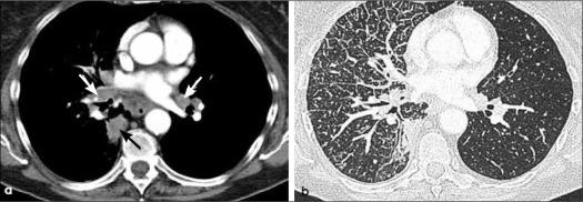 cancer pulmonar primario y secundario)