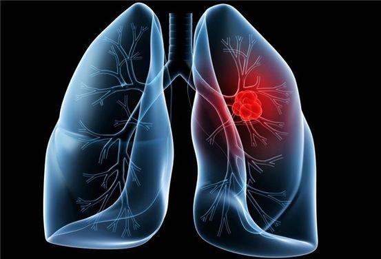 cancerul ductului biliar