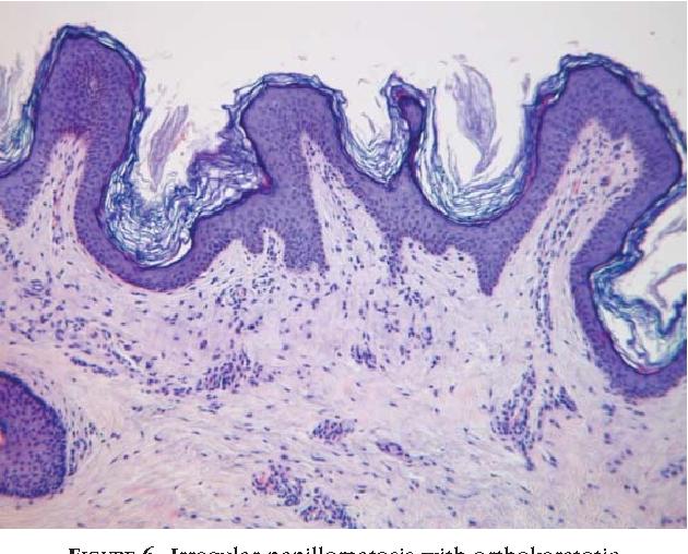 papillomatosis and hyperkeratosis
