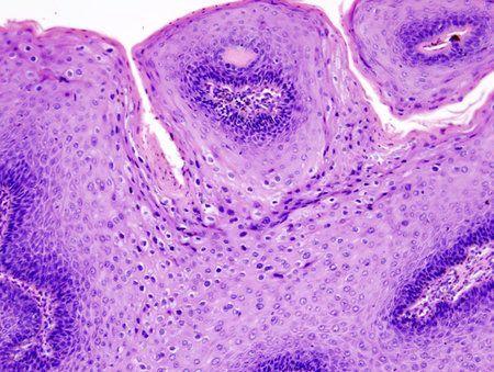 virus papiloma humano sintomas y tratamiento)