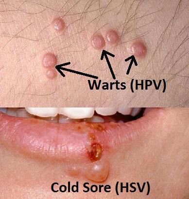 papilloma vs warts)