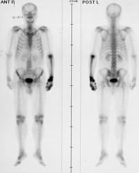 cancer de san metastaze osoase)