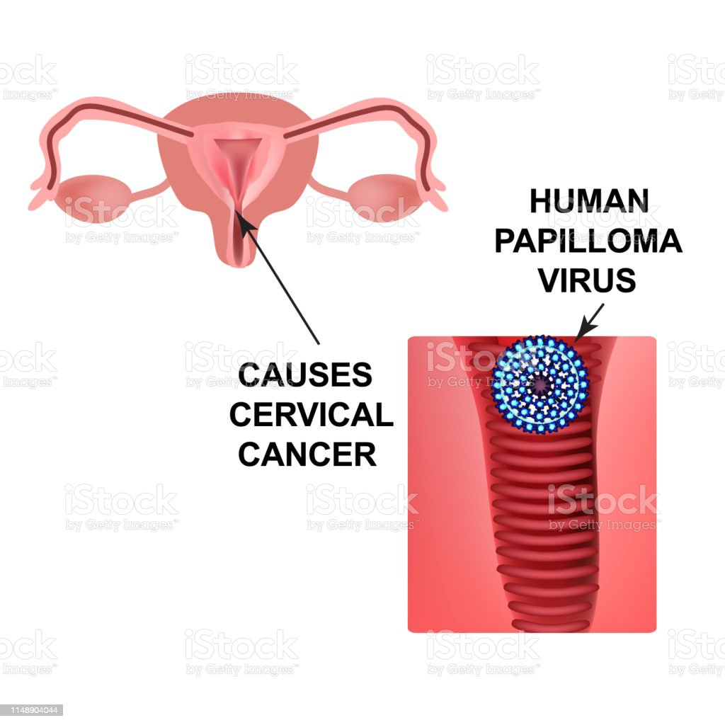 hpv virus linked to cervical cancer)
