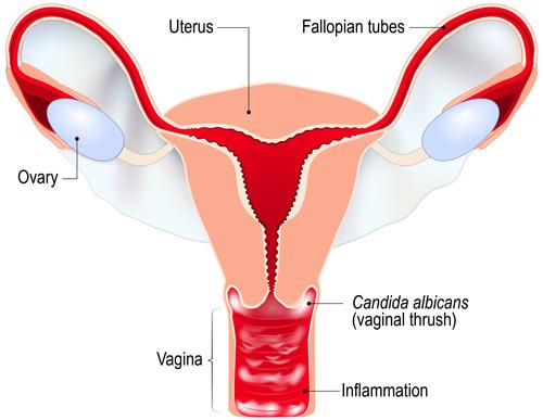 ciuperci zona intima femei)