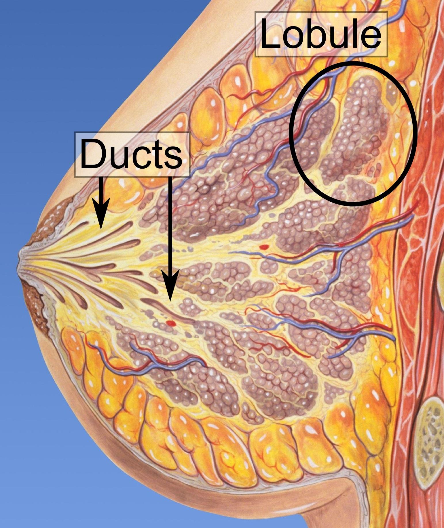 intraductal papilloma surgery necessary)