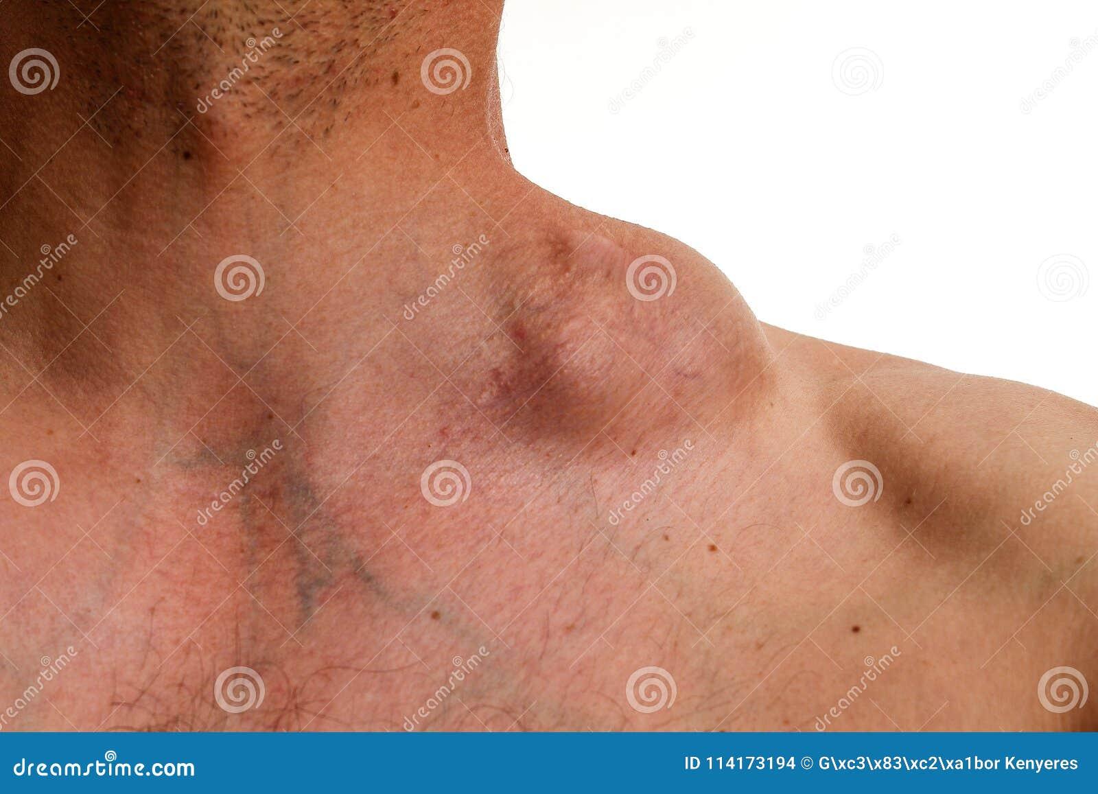 cancer du hodgkin