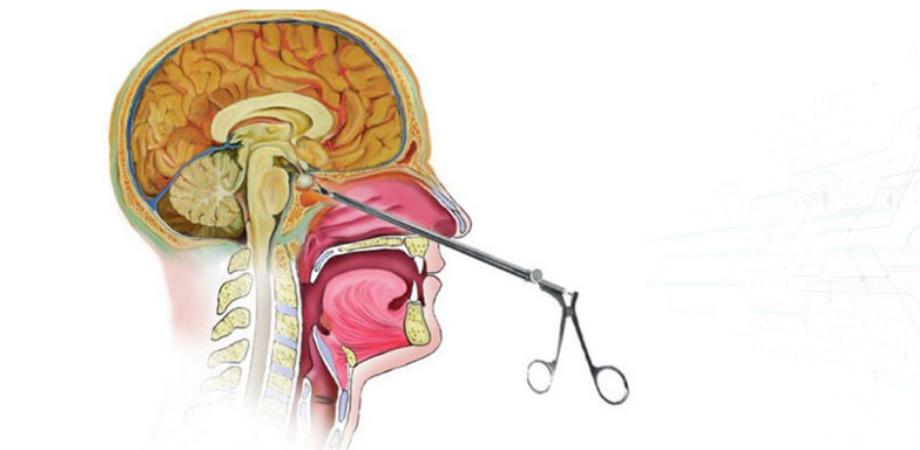 simptome cancer hipofiza