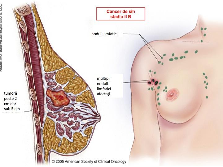 Cancerul de san - Opt semne de cancer de sân pe care poate nu le cunoşteaţi