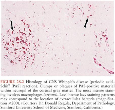 whipple bacteria ie)