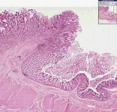 cancer colon adenocarcinoma