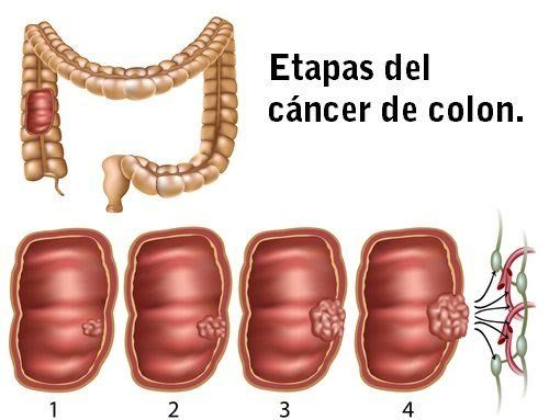 cancer de la colon