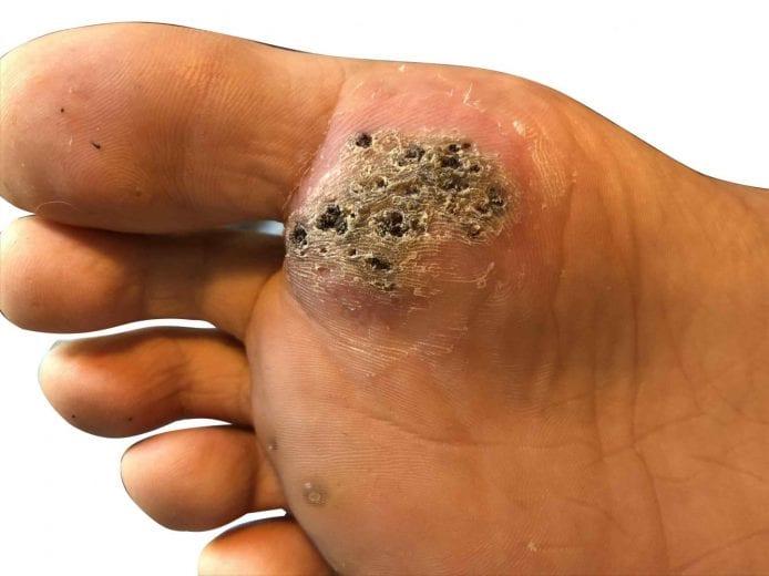 human papillomavirus cause plantar wart)