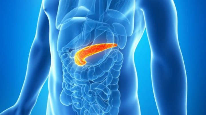 cancerul pancreatic tratament