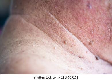 el papiloma fibroepitelial)