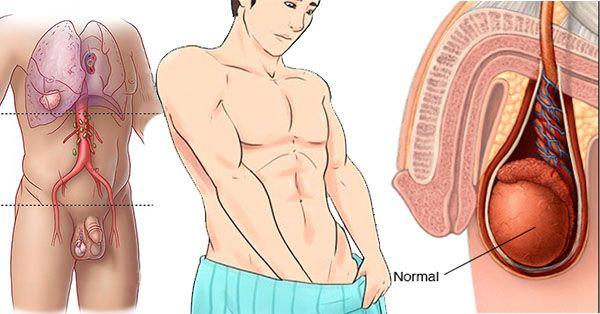 cancer testicular sintomas