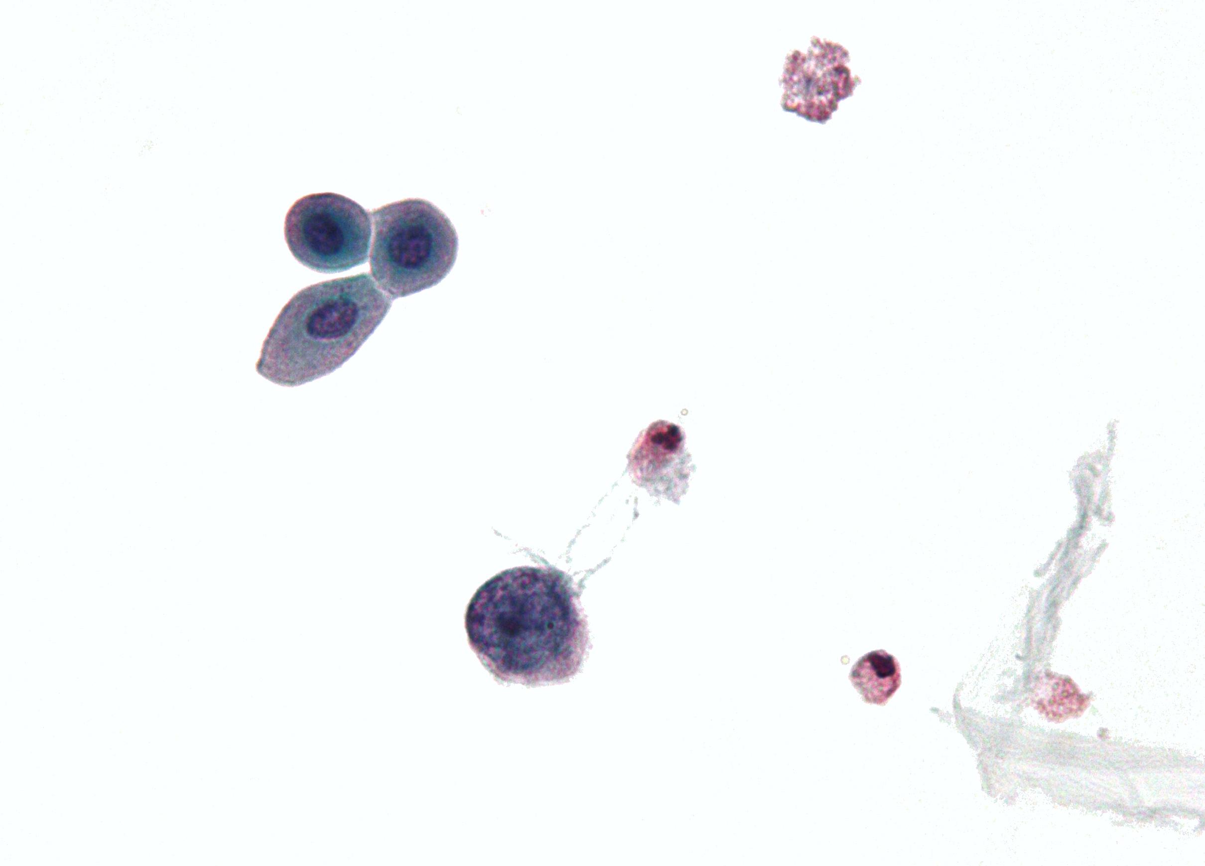 Poate fi prostatita papilomavirus uman