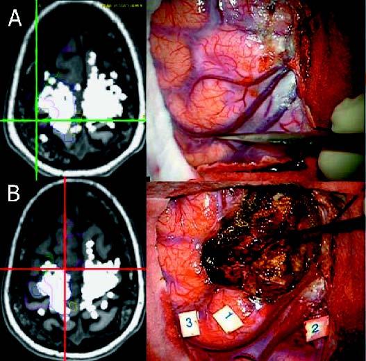 cancer cerebral imagenes