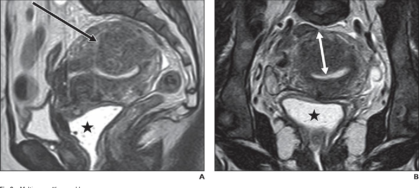 endometrial cancer junctional zone)