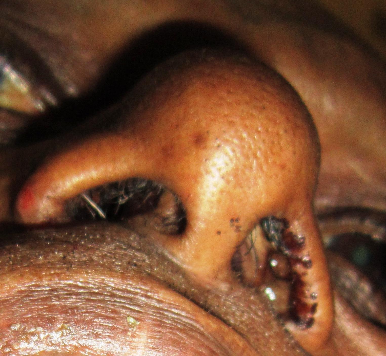 nasal squamous papilloma)