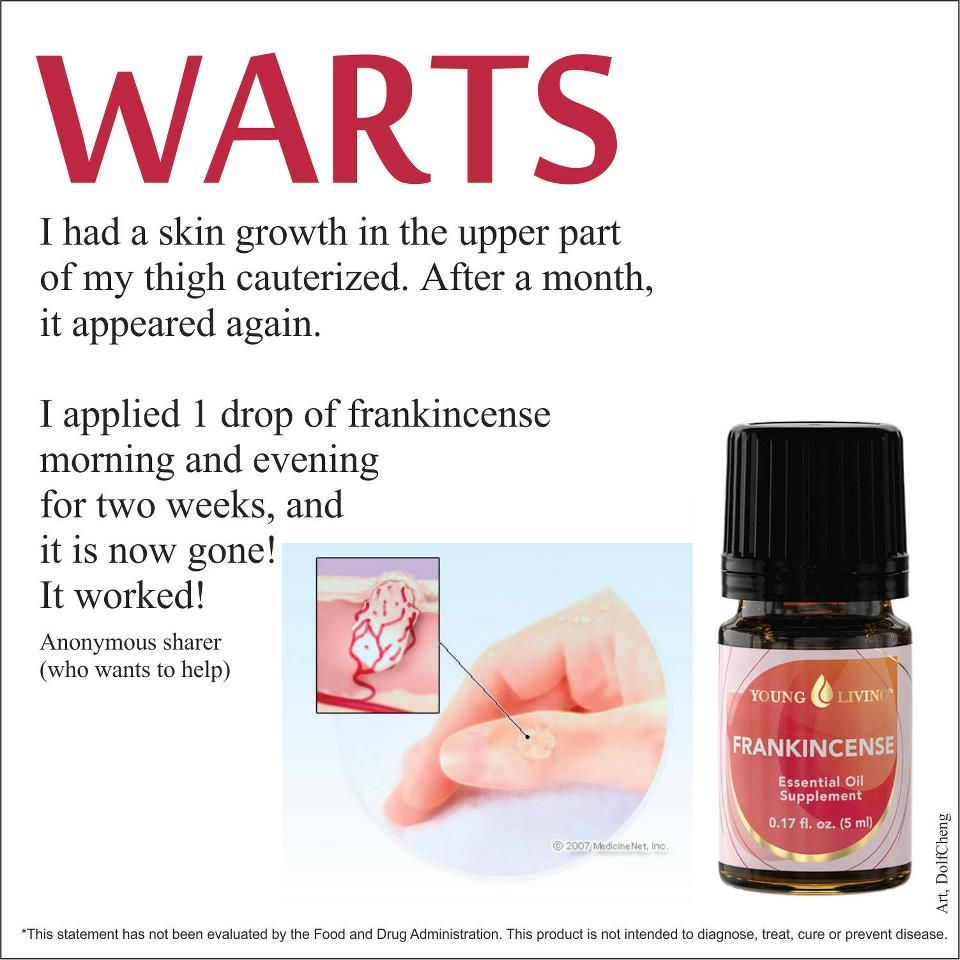 wart treatment young living
