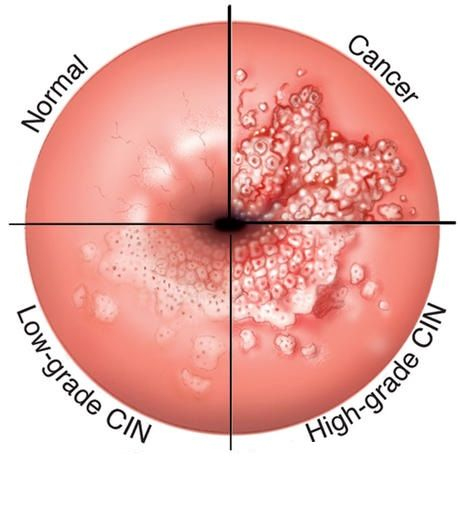 cancer cells on cervix hpv