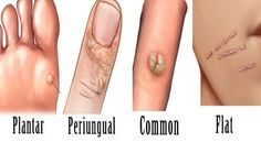 sarcome cancer generalise cancerul colorectal doare