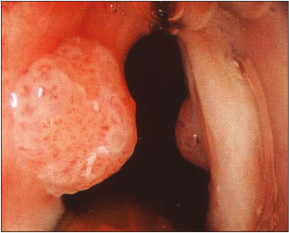 coblation laryngeal papilloma