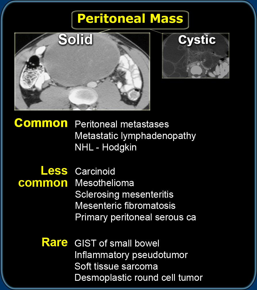 peritoneal cancer male