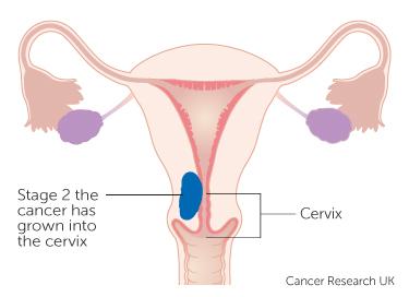 Extinderea venelor endometriale