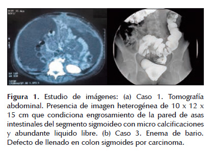 Imunoterapia in cancer