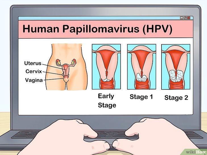 hpv contagio sin verrugas)