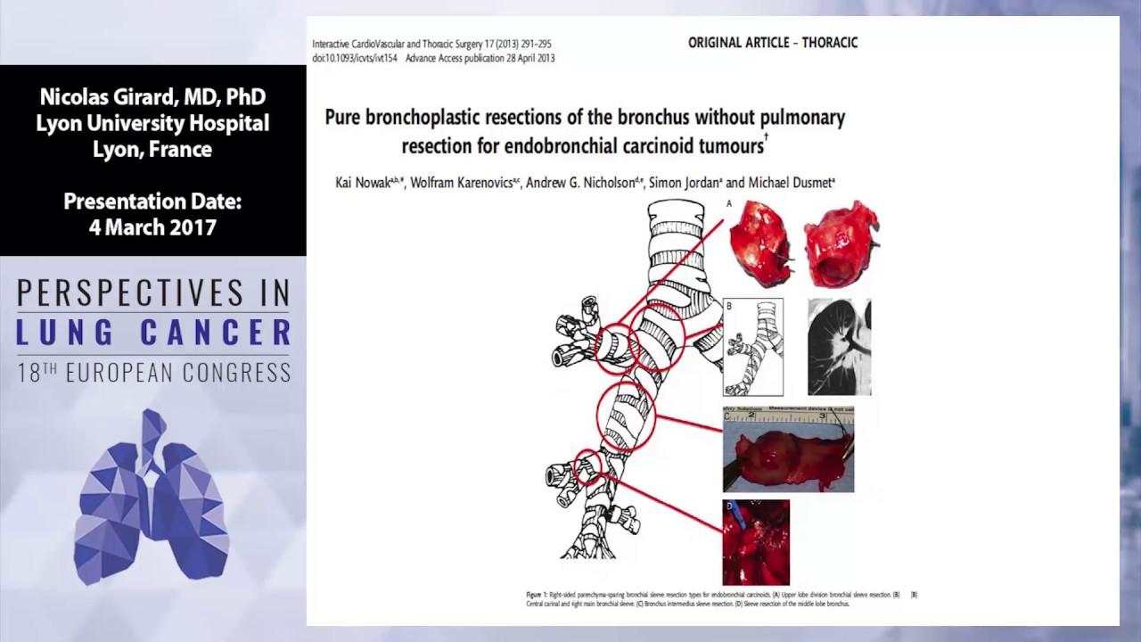 neuroendocrine cancer thymus