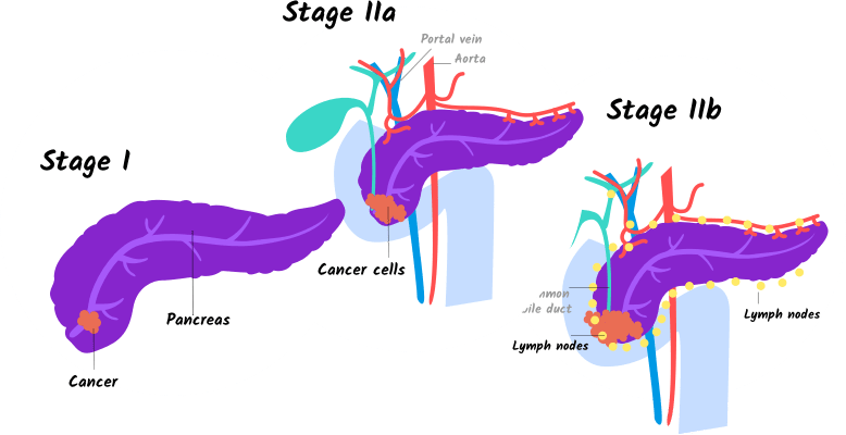 cancer pancreatic stage 4