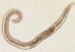 enterobiasis o enterobius)