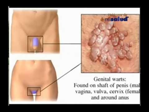 virus papiloma cuello utero