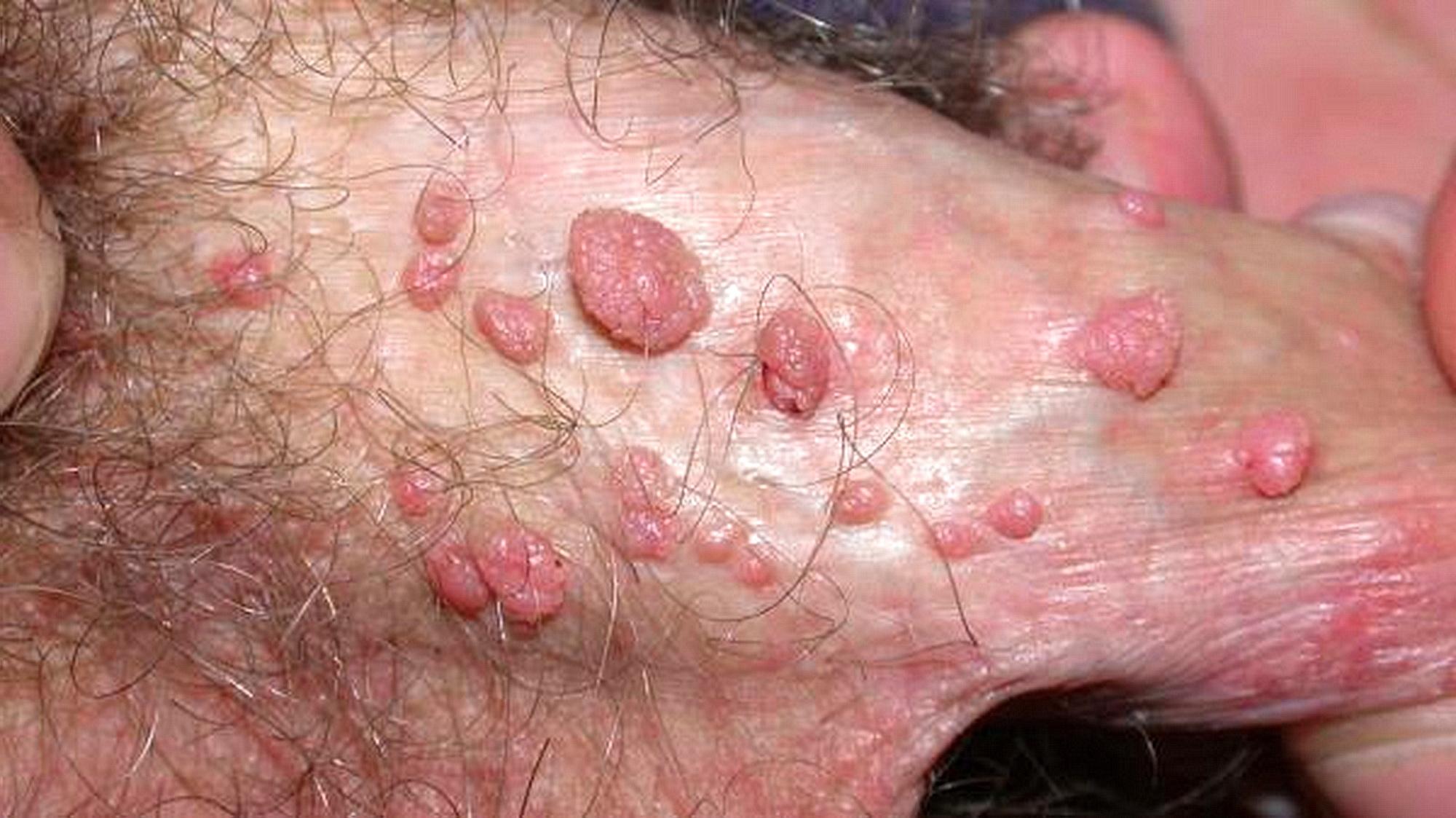 creste di gallo papilloma virus uomo