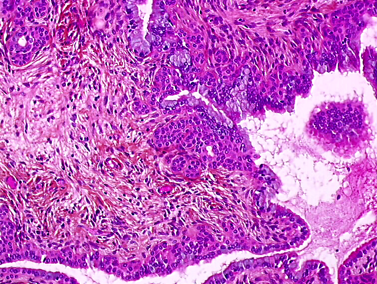 Ce este Metaplasia Squamous și ce o provoacă