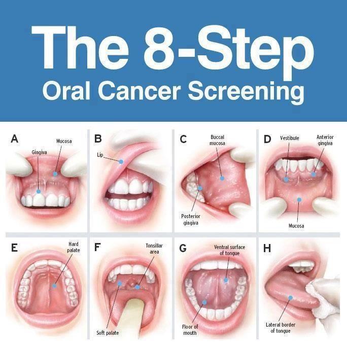 Cancerul in gura este agresiv