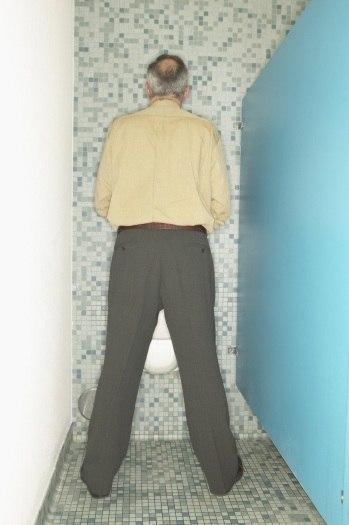 Prostatita cronica cu simptome de calcificare