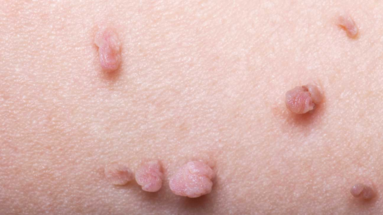hpv warts on skin