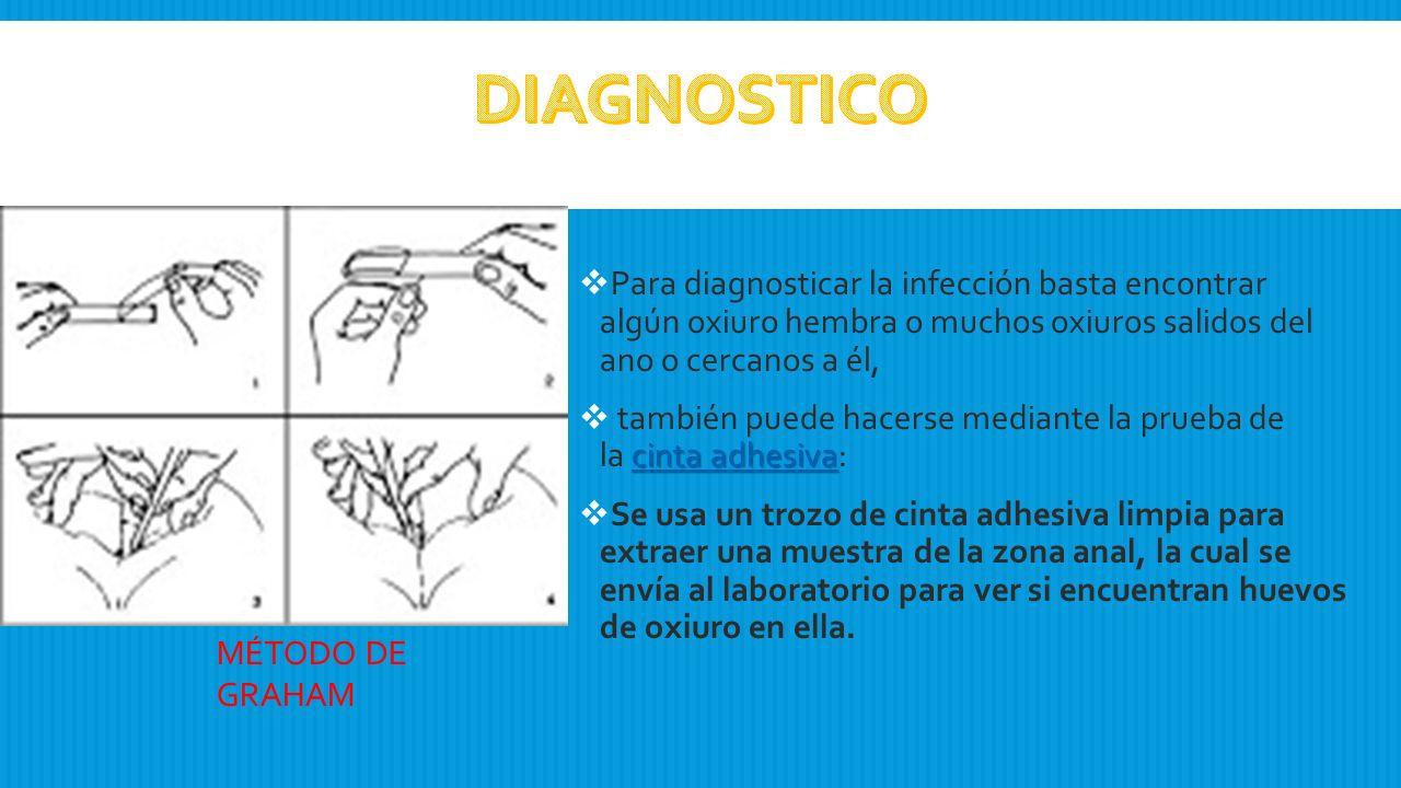 diagnostico de oxiuros