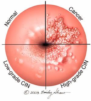 hpv cervical lesion)
