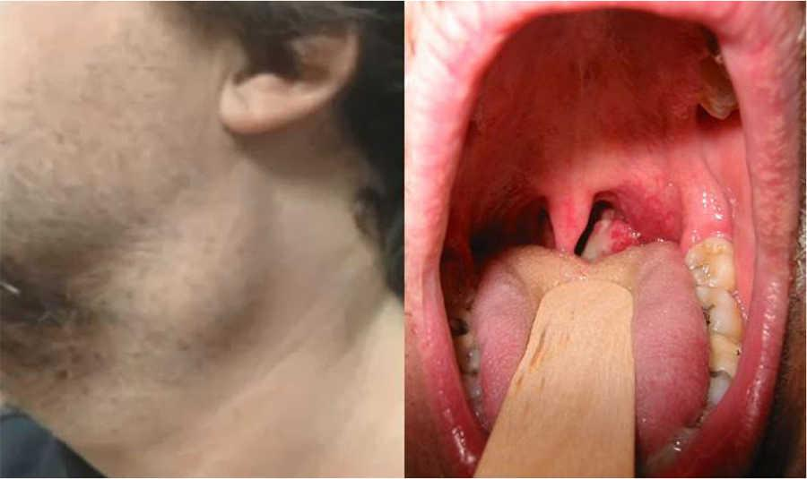 papilloma between teeth