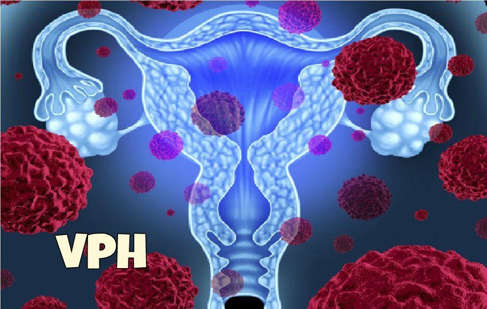 virus del papiloma uterino